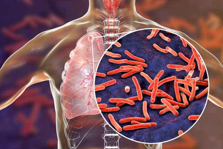 Польза восковой мольи при туберкулезе